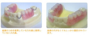 dentures_treatment_img005